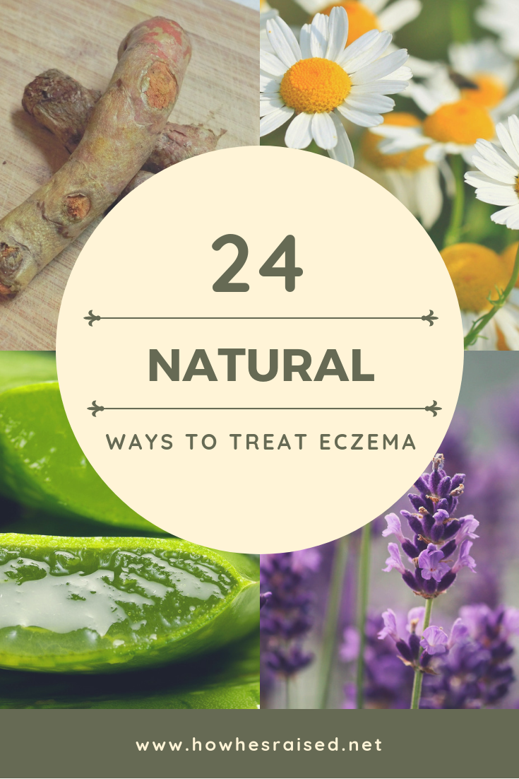 24 Remedies for Natural Eczema Relief