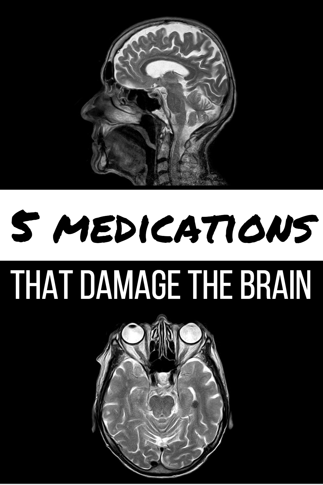 5 Medications that Damage the Brain